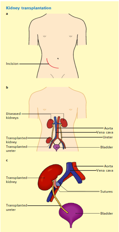 introduction to organ transplantation hakim nadey s